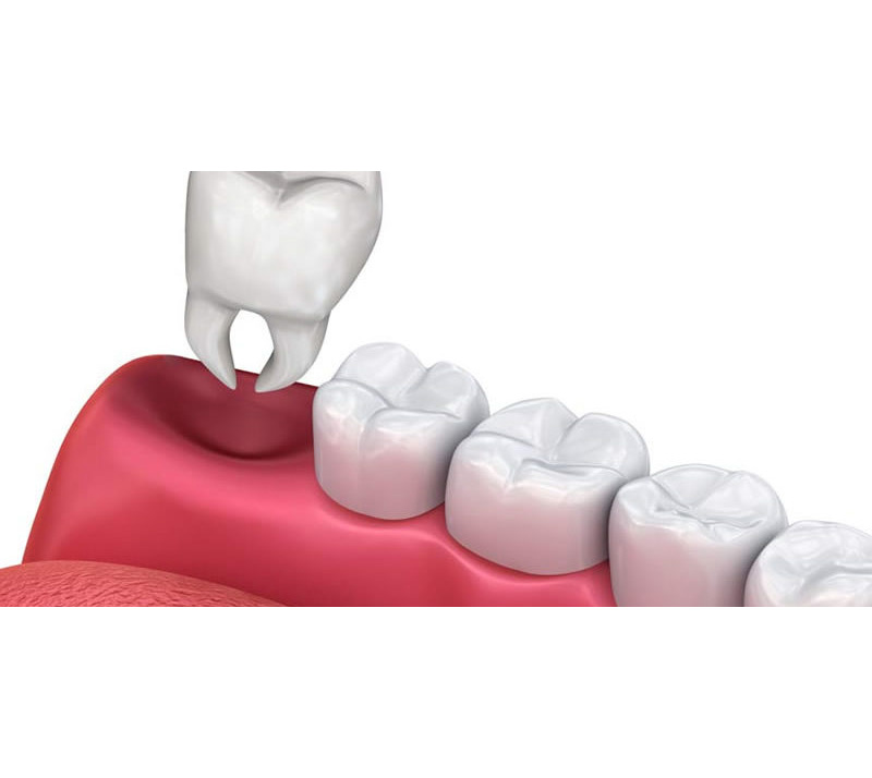 tooth extractions in chilliwack